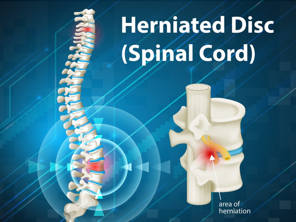 Herniated Disc in Lower Back